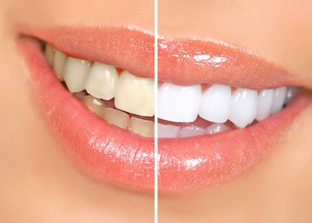 tooth whitening service