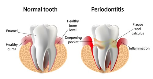 Illustration of Normal tooth vs. periodontitis